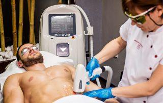 Tratament Epilare Definitiva cu Laser la barbati, zona abdomenului